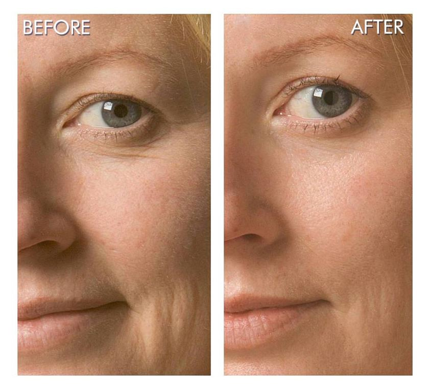 Oxygen-Facial-Before-After